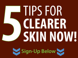 Sign-Up Below to Get 5 Tips for Clearer Skin